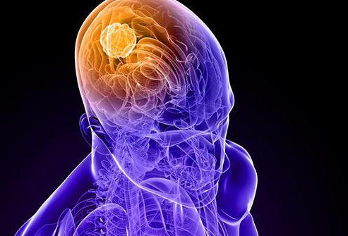 glioma v možganih, kaj je to