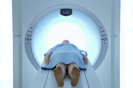 glioma možganskega debla pri otrocih