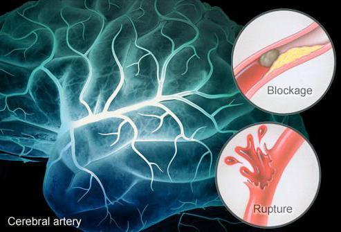 trattamento di ischemia cerebrale