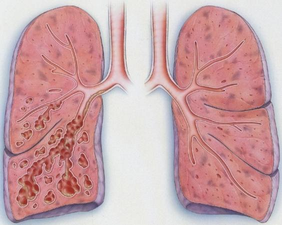 bronhioektazije