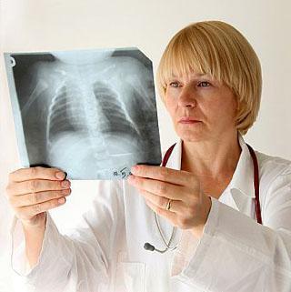 liječenje bronhiektazije