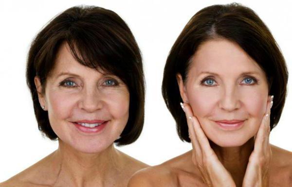 posvjetljivanje lica vodikovim peroksidom