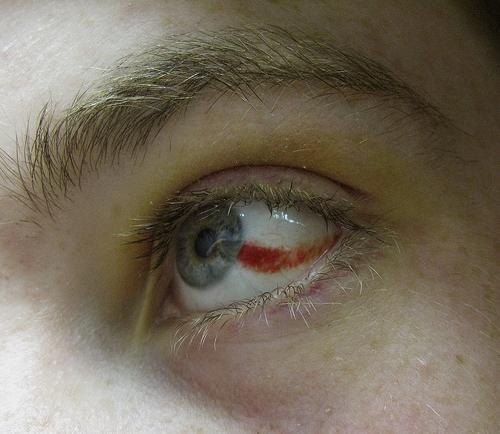 I capillari irrompono negli occhi