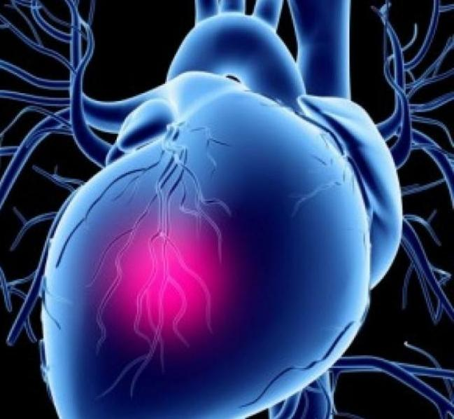 кардиогени шок