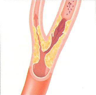karotidna aneurizma