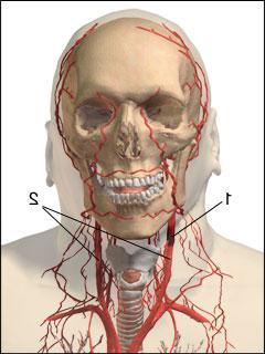karotidne arterije na vratu