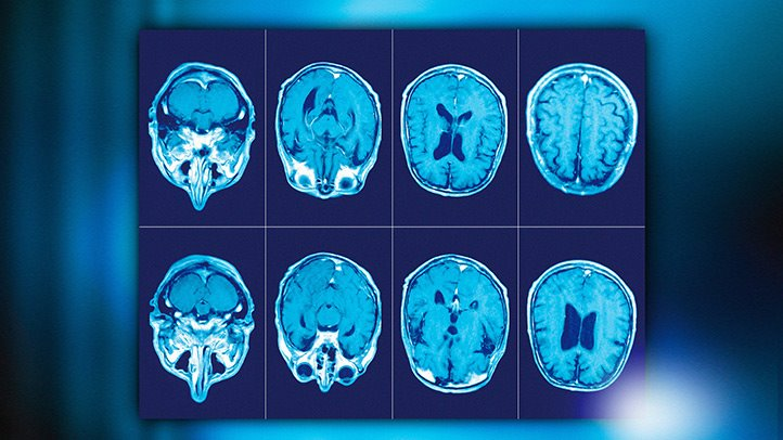 RM per la sclerosi multipla