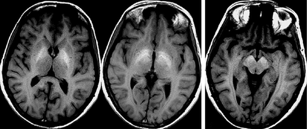 Risonanza magnetica per encefalopatia