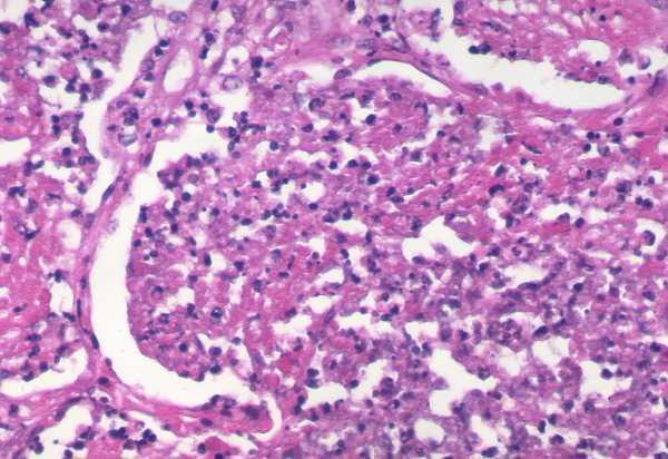 distalni kataralni ezofagitis