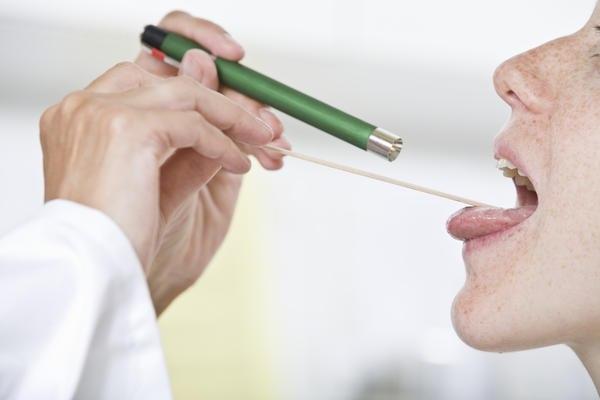 Diagnosi del cancro alla gola