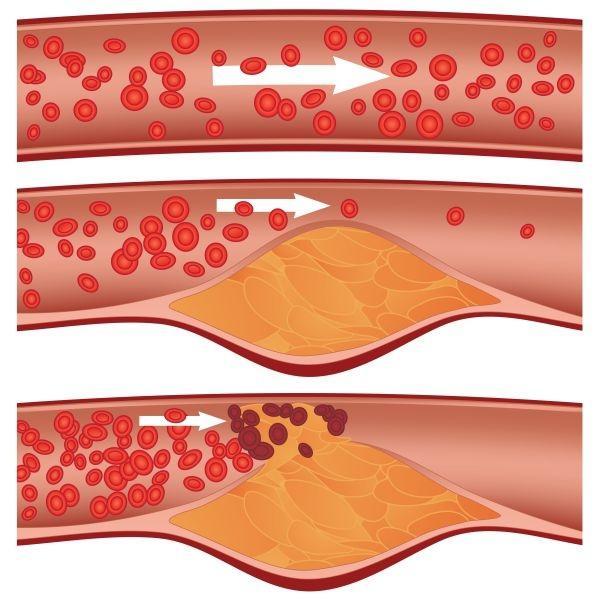 cerebrální artérioskleróza