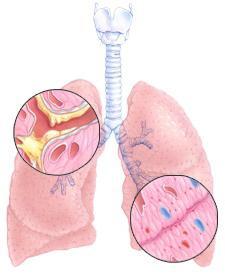 trattamento di bronchite cronica