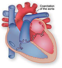 коарктација аорте