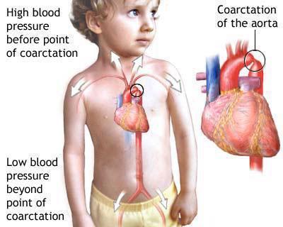 коарктација аорте код деце