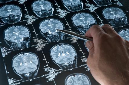 léčba kognitivních poruch