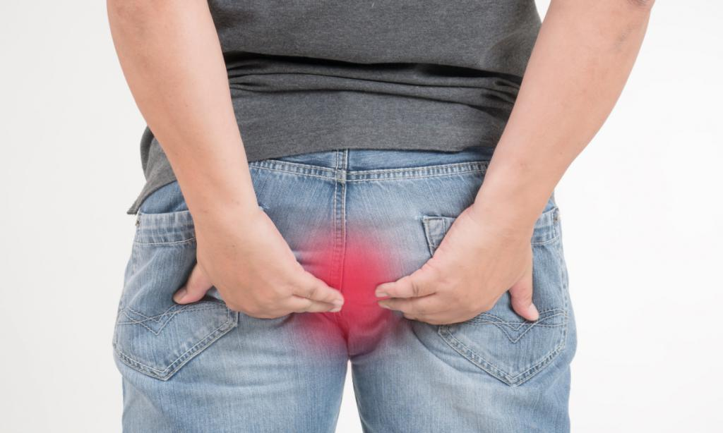 Choroba hemoroidów