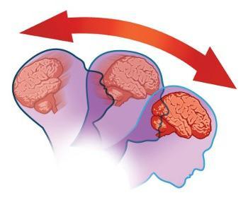 знакови потреса мозга