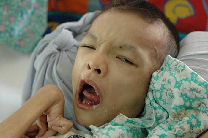 конгениталне малформације код деце