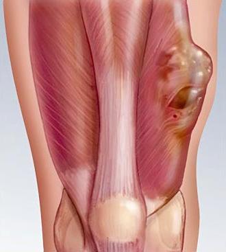 bolesti vezivnog tkiva