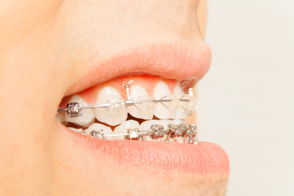 Stosowanie aparatów ortodontycznych