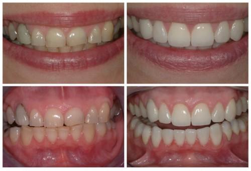 Przed i po zastosowaniu aparatów ortodontycznych