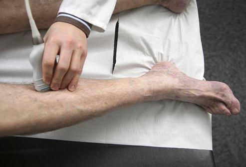 третман дубоких венских тромбофлебитиса