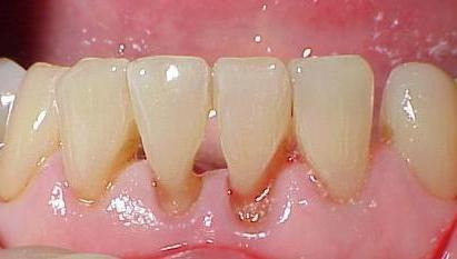 как да се отървем от зъбен камък
