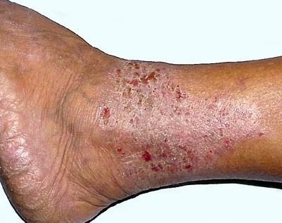 zapalenie skóry na nogach
