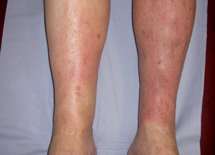 przyczyny zapalenia skóry