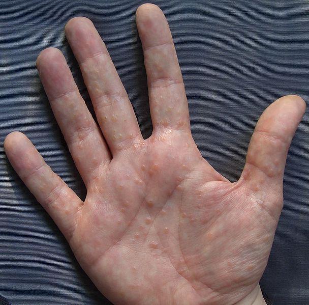 dermatite unguento