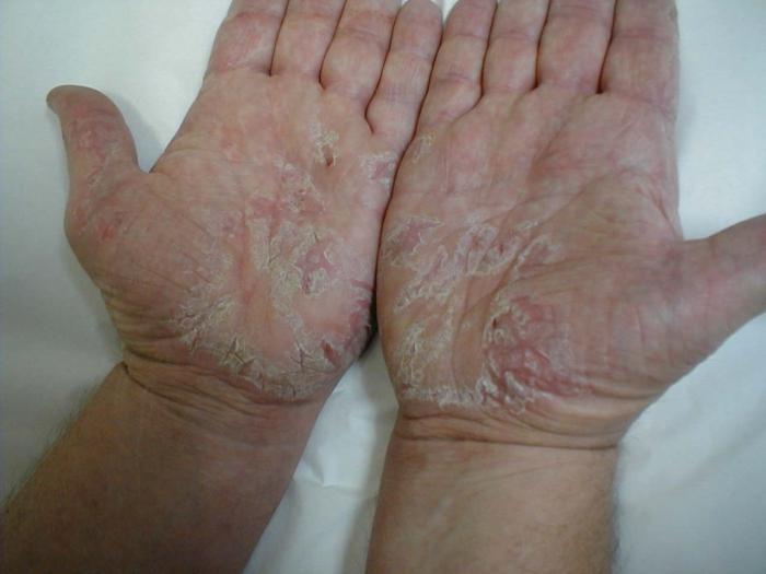 симптоми на дерматит