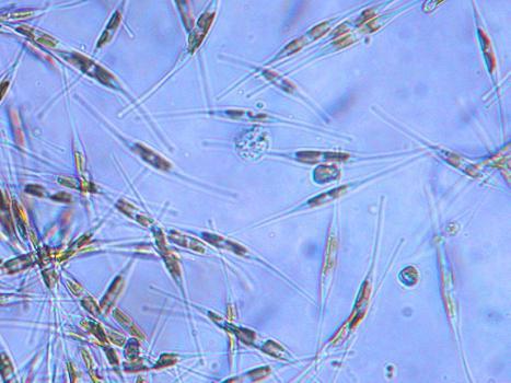 reprodukce diatomů