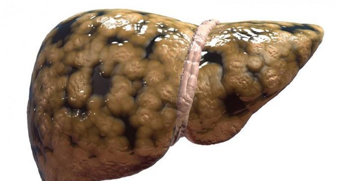 dieta 5 con cirrosi epatica