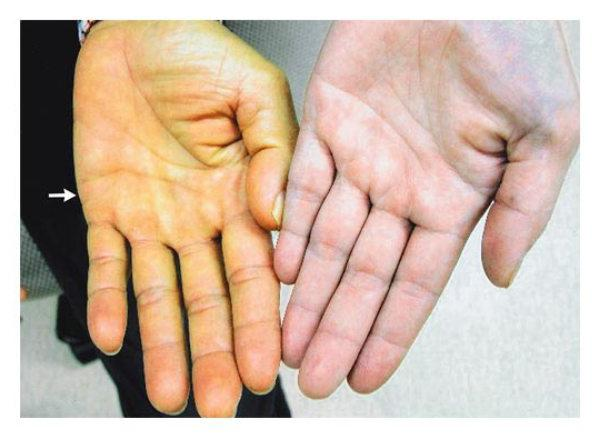 Диференциална диагностика на инфекциозни заболявания