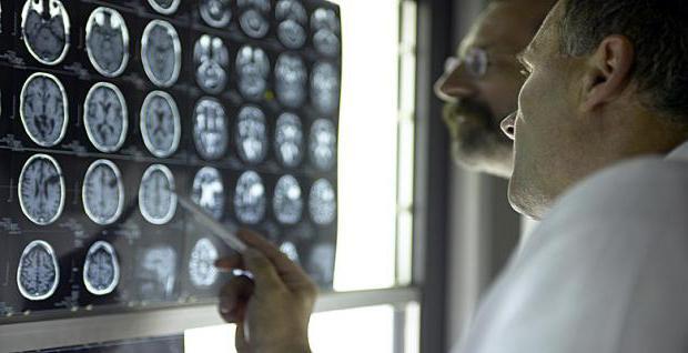 amyotrofická onemocnění laterální sklerózy