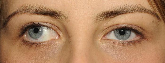 danno del nervo oculomotore