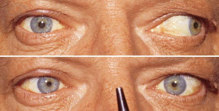 trattamento del nervo oculomotore