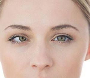 paralisi del nervo oculomotore