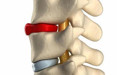избочина леђног диска шта је то