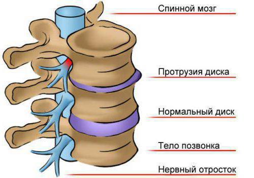 протресање дорзалног интервертебралног диска