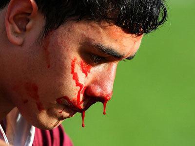 sanjska knjiga krvavi iz nosu