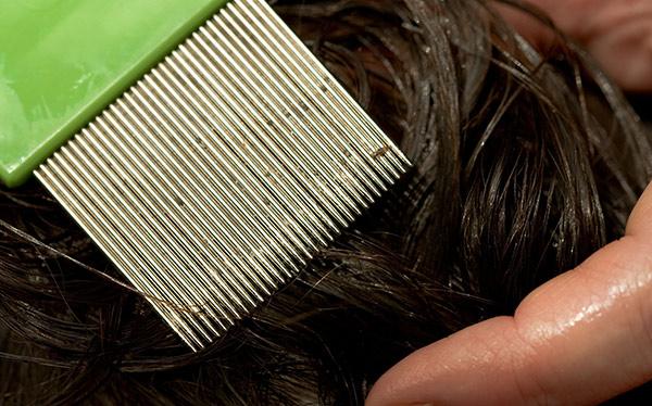 Какво мечтае за гниди по косата