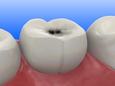 Che sogni di denti marci