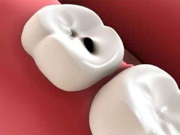 I denti sognano in sogno
