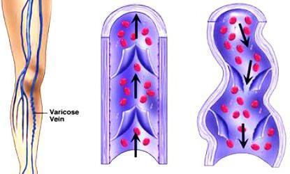 аскорутин нуспојаве