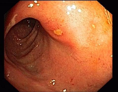 nutrizione dell'ulcera duodenale