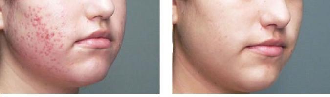 Gel Acnesel dalle macchie dopo l'acne