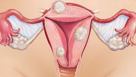 възможно е ендометриоза