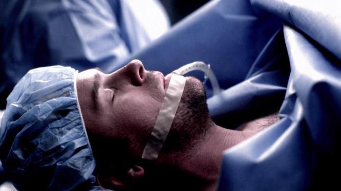 anestesia endotracheale