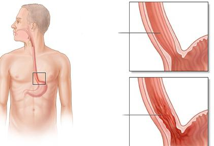 симптоми на ерозивен езофагит